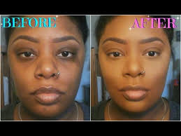how to color correct conceal dark circles acne scars birthmarks for dark skin makeup tutorials