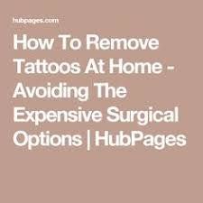how to remove tattoos at home fast u2013 28 natural ways permanent
