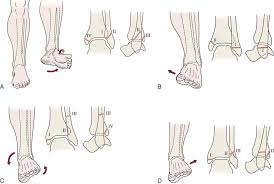 Anterior Distal Tibiofibular Ligament Lower Leg Ankle And Foot Musculoskeletal Key