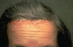 light treatment for scalp psoriasis scalp psoriasis causes treatment options natural home remedies