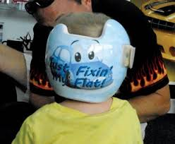 doc band wraps 32 best doc bands images on helmets baby helmet and