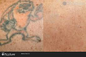 laser tattoo removal picosure claritas laser clinic
