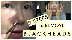 how to remove blackheads without enlarging pores what are
