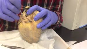 Heart External Anatomy 6 4 The External Anatomy Of The Heart Image Collections Learn