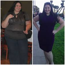three years later life after gastric bypass surgery