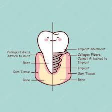 Cartoon Human Anatomy Cute Cartoon Tooth Implant Anatomy U2014 Stock Vector Etoileark