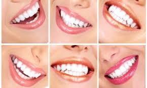 Comfort Dental Las Vegas Desert Hills Dental Dr Deborha Staten Your Las Vegas Dentist