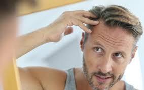 rachel thinning hair help i m losing my hair diabetes self management