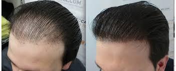 hair transplant america hair transplant market 24 growth rate technological innovations