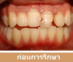 light cure composite filling welcome to white dental clinic dental dentist cosmetic tooth