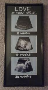 Photo Frame Best 10 Ultrasound Frame Ideas On Pinterest Sonogram Ideas