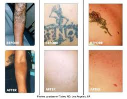 laser tattoo removal erases an inked past ahb