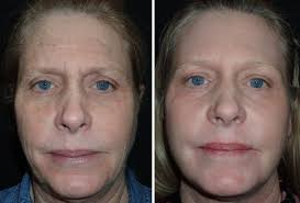 co2 laser resurfacing richmond va co2 laser skin treatment