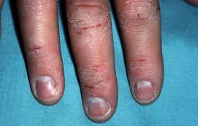 itchy bumps on hands that spread itchy bumps on hands eczema back not itchy itchy blisters feet