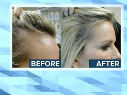 hair for hair new treatment offers for women with hair loss abc news