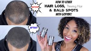 haircuts for crown bald spots how to cover up hair loss thinning hair and bald spots w gofybr
