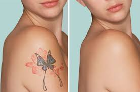 laser tattoo removal 5 aftercare tips for faster recovery