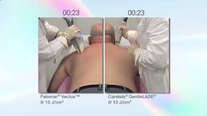 palomar laser hair removal reviews the palomar vectus laser vs the syneron candela gentlelase youtube