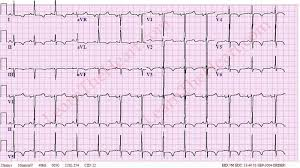 strain pattern ecg meaning left ventricular hypertrophy with strain pattern exle 4