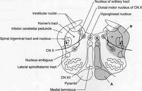 Pyramids Of The Medulla Parinaud Syndrome Artery Cerebral Artery Vertigo Treatment