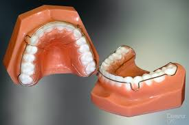 Removable by Removable U0026 Bonded Retainers At Forrest Orthodontics Dr Forrest