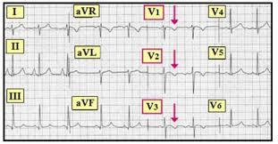 strain pattern ecg meaning ecg interpretation ecg interpretation review 28 st t wave changes