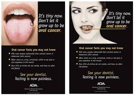 Roof Of Mouth Cancer Images by Velscope U2026the Key To Diagnosing Oral Cancer Early Henderson
