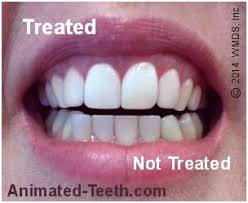 pro light dental whitening system reviews how to pick out the best teeth whitening system zoom britesmile