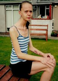 shocking pictures show how one woman succumbed to anorexia eating