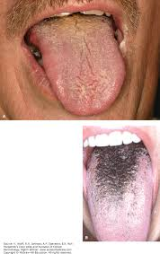 Pictures Of Oral Cancer On Roof Of Mouth by Disorders Of The Mouth Fitzpatrick U0027s Color Atlas And Synopsis Of