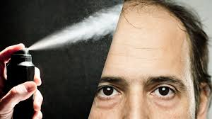 Reasons For Sudden Hair Loss Dry Shampoo Is The Latest Reason Why You U0027re Losing Your Hair Gq