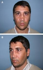 management of saddle nose deformity dermal and costal
