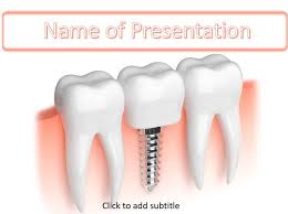 dental templates for powerpoint free download tooth implant powerpoint template free download