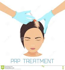 prp treatment for hair loss stock illustration image 71970574
