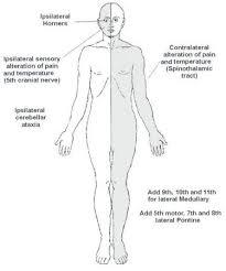 Brain Stem Anatomy Helpful Brainstem Figures