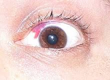 Can Lasik Cause Blindness Lasik Wikipedia