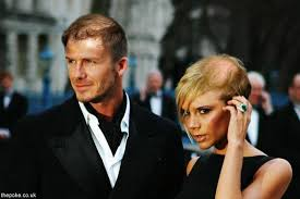 haircuts for crown bald spots prince william bald patch fashion galleries