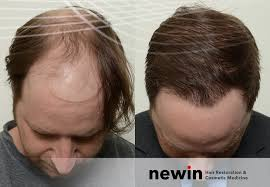 hair transplants and treatment in melbourne and sydney