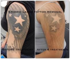 tattoo removal inc after the 4th treatment erased tattoo removal las vegas www