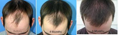 hair transplant month by month pictures 8 18 months important period forum by and for hair loss patients
