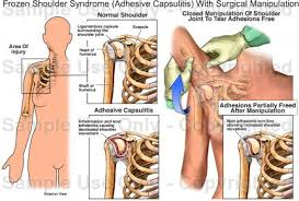 Human Shoulder Diagram Frozen Shoulder Syndrome Adhesive Capsulitis With Surgical