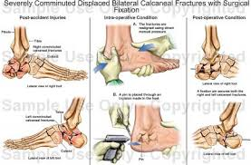 Calcaneus Anatomy Severely Comminuted Displaced Bilateral Calcaneal Fractures With