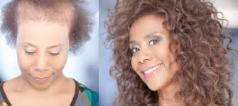 leading hair loss treatment nyc salon new horizons hair by bianca