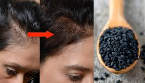 kalonji for hair growth significant ways you can use black cumin kalonji to cure