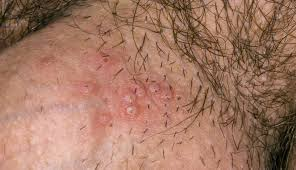 genital herpes labia minora pictures   Herpes News   Treatment     Recognizing the Type on Genital Herpes Treatment   Herpes Genital