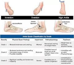 High Ankle Sprain Anatomy Ankle Sprains Eversion Injury Part 2 Dr Patrick Newman