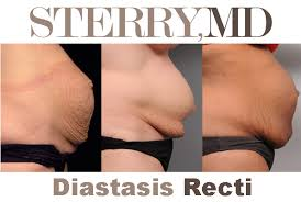 stomach muscles after c section how to fix diastasis recti tighten your tummy after pregnancy