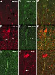 chandelier cells voltage gated ion channels in the axon initial segment of human