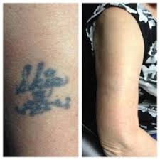 disappearing inc 15 photos u0026 11 reviews tattoo removal 150