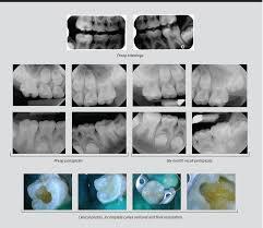 pulp vitality in pediatric patients by jarod johnson dds dentaltown